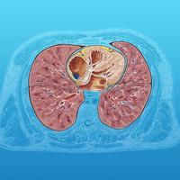 胸廓断层解剖