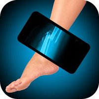 Simulator X-Ray Foot Fracture