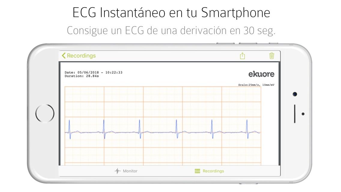 eKuore ECG App for iPhone - Free Download eKuore ECG for