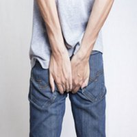 How to Prevent Hemorrhoids