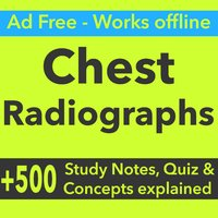 Chest Radiographs Exam Prep- Study Notes & Quizzes