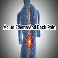 Acute Edema and Back Pain