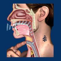 Laryngectomy