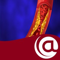 Hypercholesterolemia @PoC