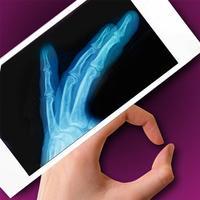 Simulator X-Ray - Finger Prank
