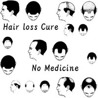 Hair loss cure Without Medicine