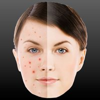 Perfect Face - Pimple, Mole and Scar Remover